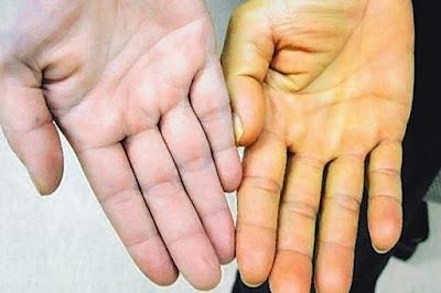 Gejala Liver: Ciri Ciri Awal Orang Terkena Penyakit Liver