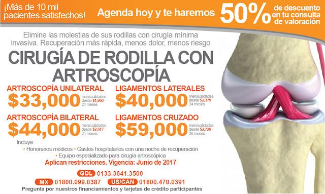 lesiones de rodilla artroscopia ligamentos cruzados ligamentos laterales traumatologia cirugia ambulatoria costo precio paquete guadalajara