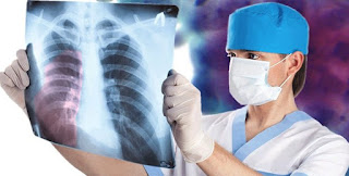 Mesothelioma Asbestos Symptoms