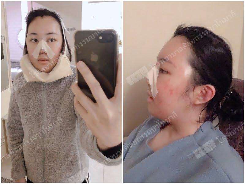 รีวิวทุบหน้า เเก้จมูก ยกหน้าผาก อาการ 3 วันหลังผ่าตัด (พาร์ท4)