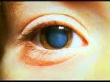 Nama , Jenis , Ciri Dan Gejala Dari Penyakit Mata