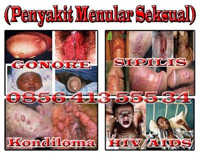 Cara Mencegah Penyakit Sifilis Pada Wanita