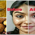 IT REMOVES THE SPOTS FROM YOUR FACE IN JUST 3 NIGHTS !
