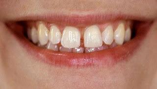 cách khắc phục kẽ hở răng cửa