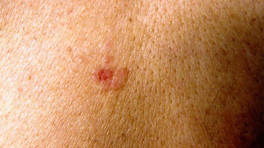 Squamous Cell Skin Cancer Survival Rate