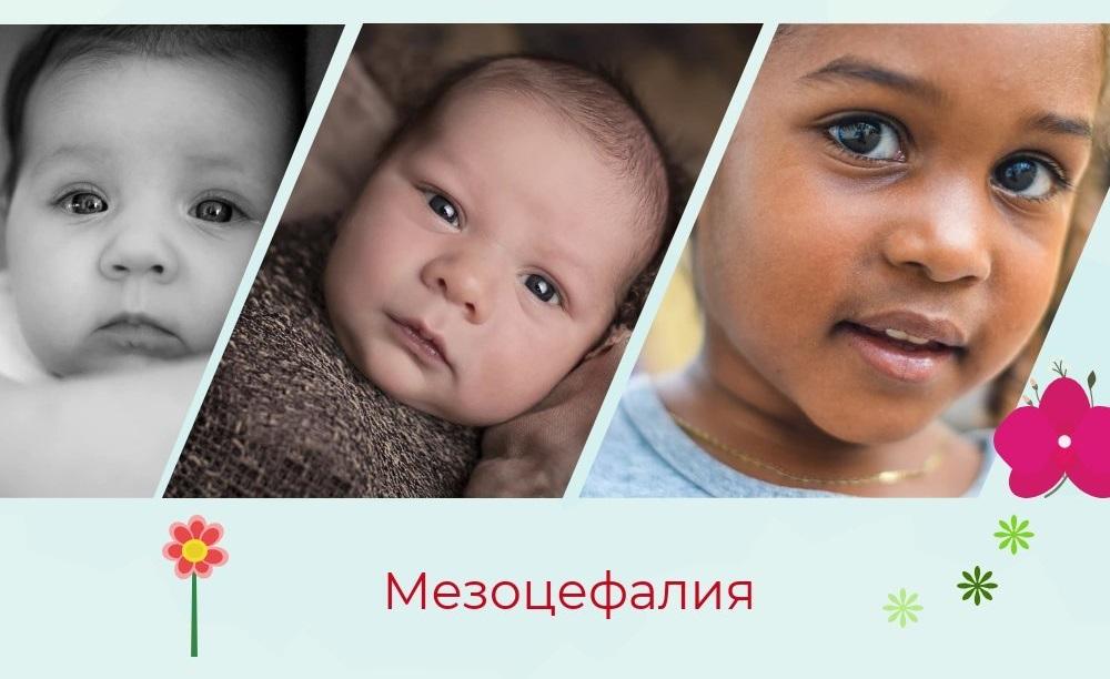 мезоцефалическая форма головы у новорожденных фото разница с долихоцефалией