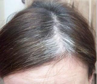 Penyebab Uban Rambut dan 10 Cara Menghilangkannya