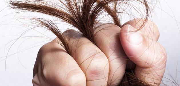 علاج تقصف الشعر وجفافه .