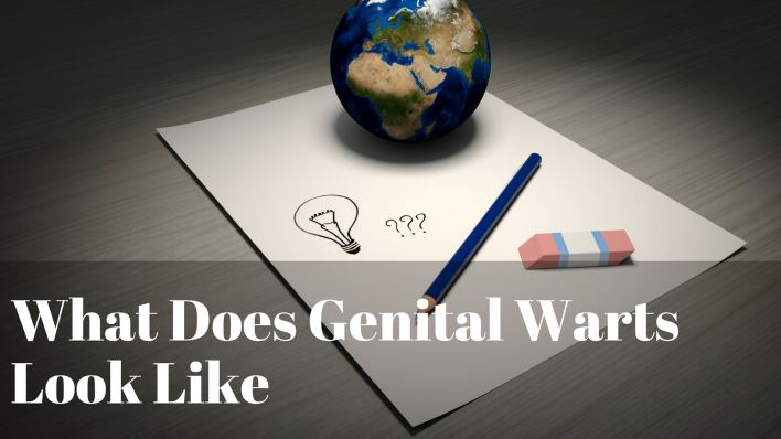 What Does Genital Warts Look Like
