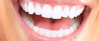 הלבנת שיניים בראשון לציון