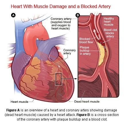 Cardiac Arrest - Heart Attack வித்தியாசம் என்ன?