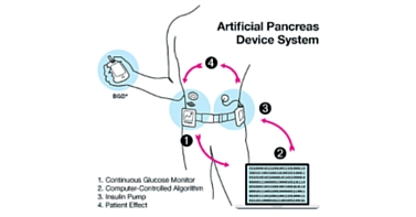 Uno schema sulle componenti del pancreas artificiale