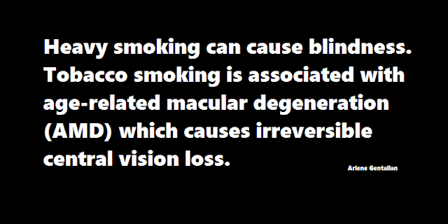 Heavy smoking can cause blindness. Tobacco smoking is associated with age-related macular degeneration (AMD) which causes irreversible central vision loss.