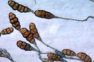 Divisi Deuteromyotina