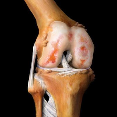 مفصل-الركبة