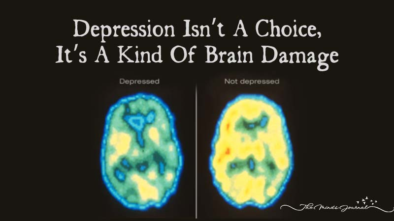 Depression Isn't A Choice, It's A Kind Of Brain Damage