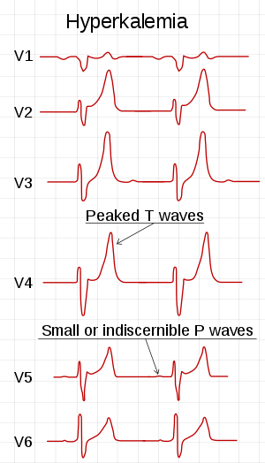 高血鉀 Hyperkalemia