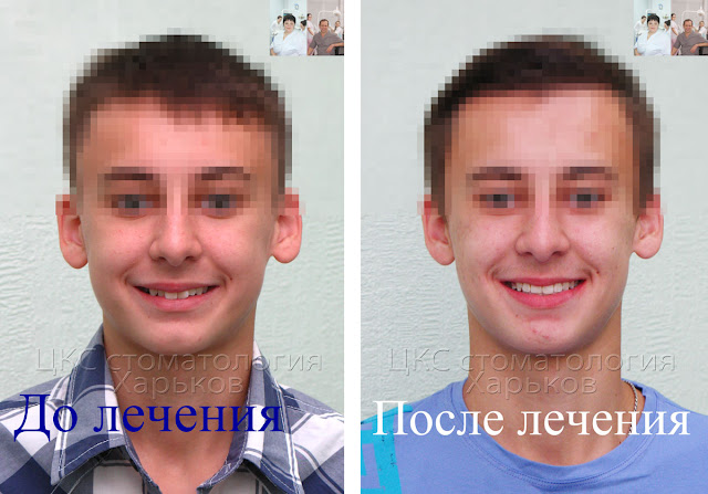до и после лечения брекетами с удалением зуба
