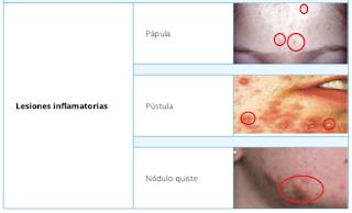 lesiones%2Binflamatorias%2Bacne%25CC%258