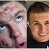 Lelaki Ini Dedah Tips Cara Menghilangkan Jerawat Tanpa Ubat-Ubatan