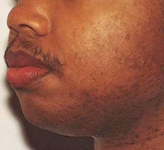 bulu lebat dan sedikit rambut di daerah mulut