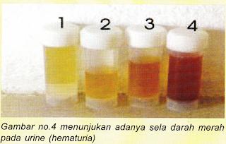 Cara Mengobati Kencing Berdarah / Hematuria Secara Alami