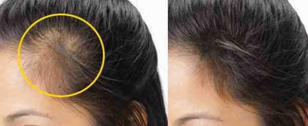 السدر لانبات الشعر في مقدمة الراس