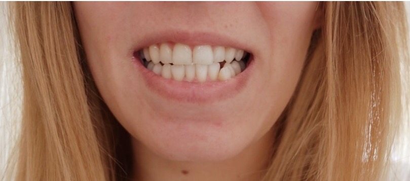 Teeth Whitening Review:Oral B White Strips