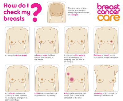 Bagaimana Mengenali gejala awal kanker payudara