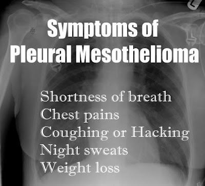 Symptoms of Pleural Mesothelioma of the Chest
