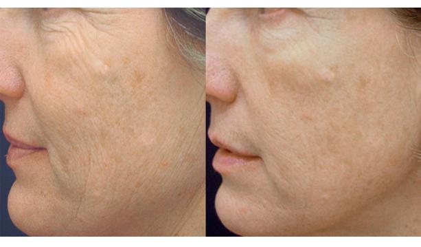 Những lưu ý cơ bản mà bạn cần biết khi thực hiện căng da mặt
