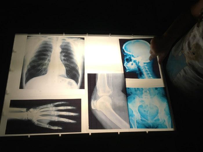 radiografías imprimibles para mesa de luz, cuerpo humano x-ray