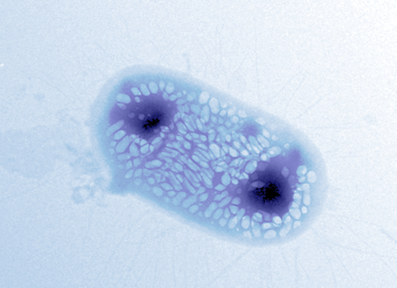 Researchers Create Bacteria to Reflect Sonar Signals for Ultrasound Imaging