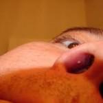طبيعى Normal علاج الحبوب داخل الانف وخارجها بالاعشاب الطبيعية