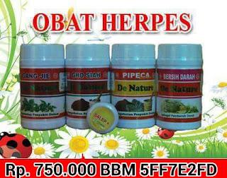 Mengobati Herpes Secara Alami