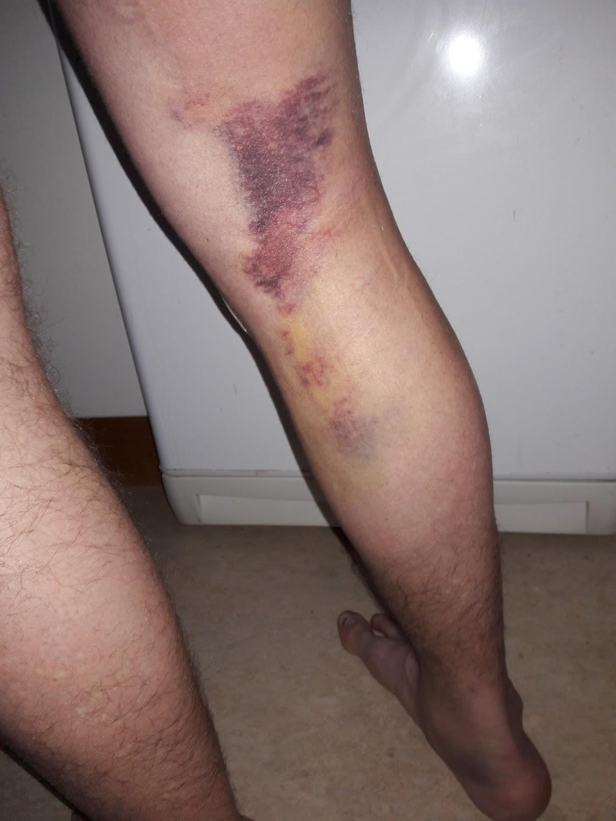 Smärta efter korsbandsoperation
