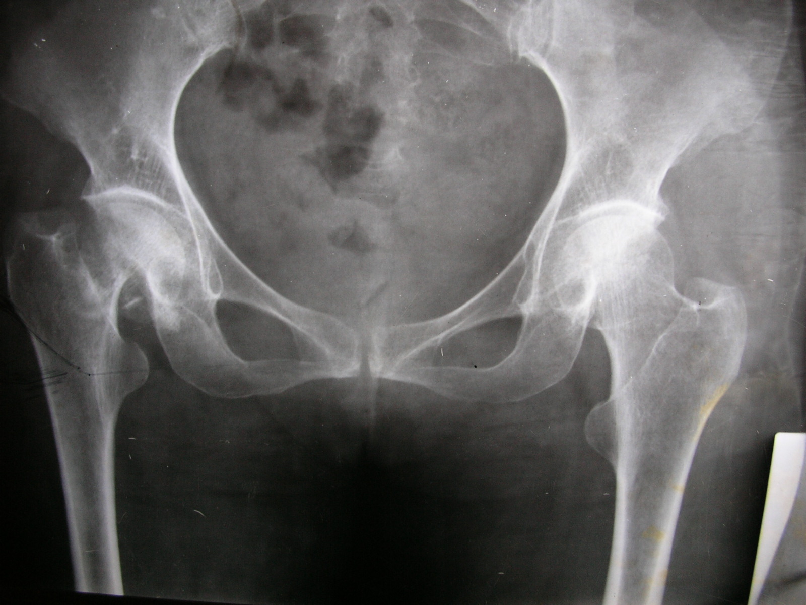 X-rays and Slides: another old fracture neck of femur (Right)