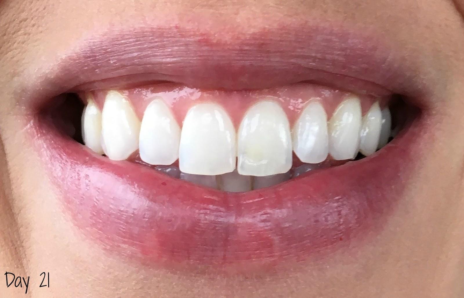 Smile Brilliant Teeth Whitening Impressions Day 21