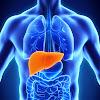 Yang Perlu Anda Ketahui Tentang Hepatitis