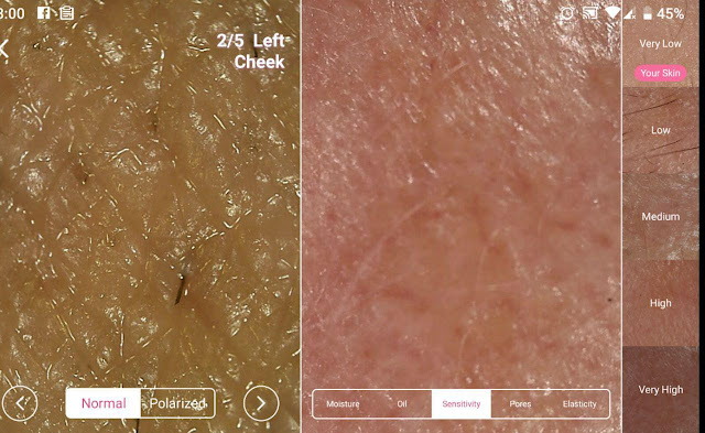 jenis-jenis masalah kulit muka