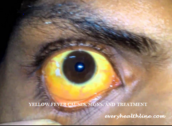Yellow Fever: Causes, Signs, Prevention and Treatment