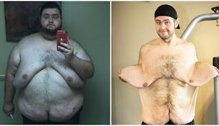 Άντρας κατάφερε να χάσει πάνω από 135 κιλά, έκανε εγχείρηση αφαίρεσης δέρματος και έγινε πραγματικό μοντέλο