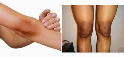 12 Simple Ways to Get rid of Black Knees/Elbow