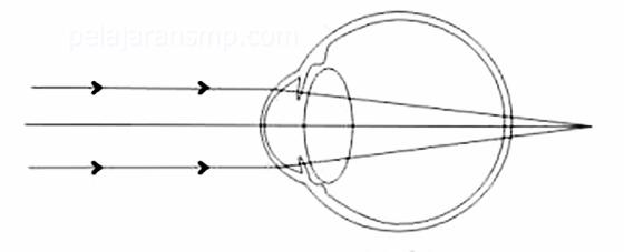 Ulangan Harian 30 Soal Materi Cermin, Lensa, Alat Optik, dan Cahaya Beserta Kunci Jawabannya IPA SMP