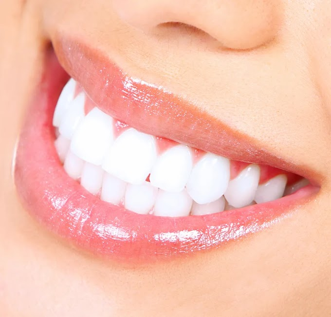 Five Things to Do If Your Teeths Are Turning Yellow, Check It Out