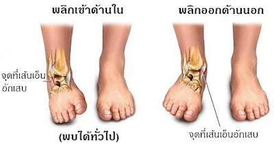 ผลการค้นหารูปภาพสำหรับ ข้อเท้าแพลง