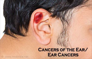 Ear Cancer