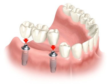 3f856404a50b Entre as próteses implantosuportadas esta é a mais cara de todas. Tem uma  estética superior e resiste ao desgaste. Tem o inconveniente de lascar ou  quebrar ...