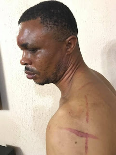 A man who was mercilessly beaten for allegedly sleeping with a married woman.
