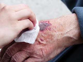 ilustrasi luka bernanah
